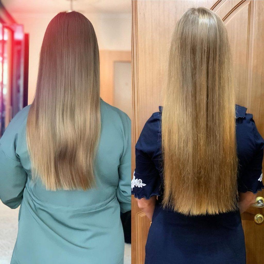 отзывы на сыворотку против выпадения волос active Occuba