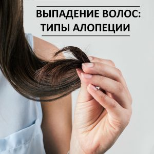формы алопеций у женщин