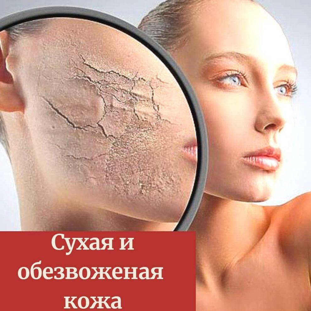 Причины сухой кожи тела у женщин и лечение